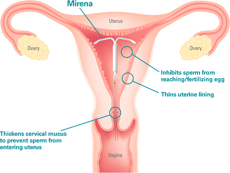 Iud Explained Jane S Due Process